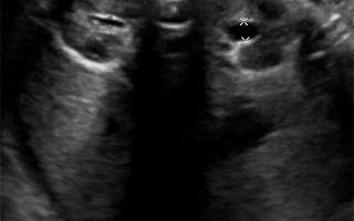 Гидронефроз у плода при беременности