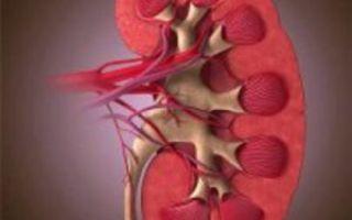 Что такое диабетическая нефропатия