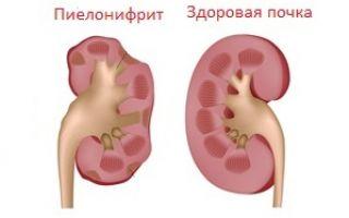 Хронический пиелонефрит симптомы и лечение