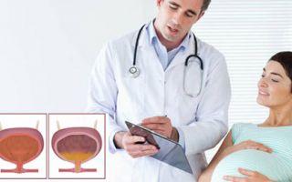Цистит во время беременности лечение