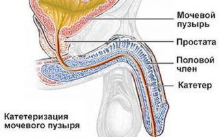 Виды катетеров для катетеризации мочевого пузыря