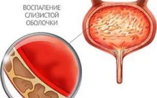 Что делать если в моче кровь
