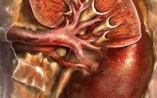 Что такое гломерулонефрит почек