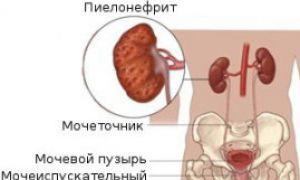 Острый пиелонефрит симптомы