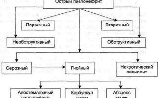 Острый пиелонефрит классификация