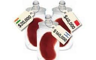 Как стать донором органов при жизни