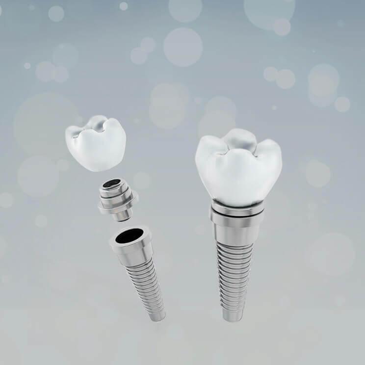 Зубные импланты: виды, стоимость