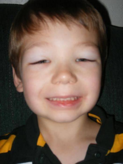 почечные отеки на лице