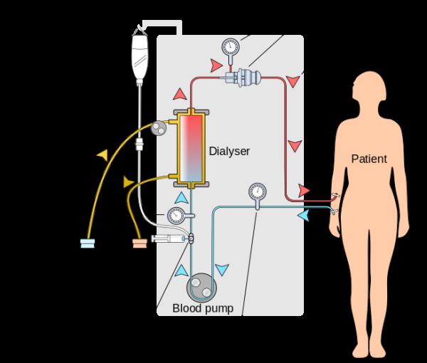 показания к гемодиализу при хпн