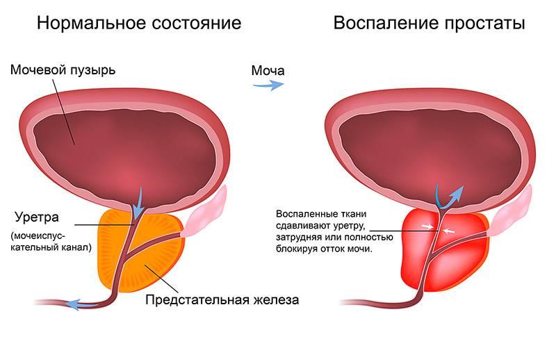 Симптомы простатита