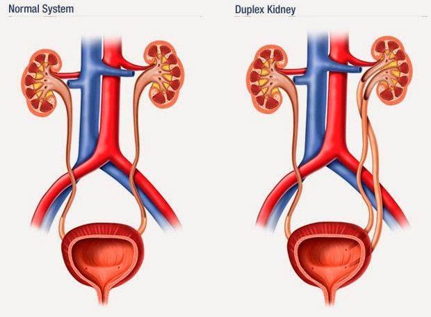 Что такое МКД почек (мочекаменный диатез)