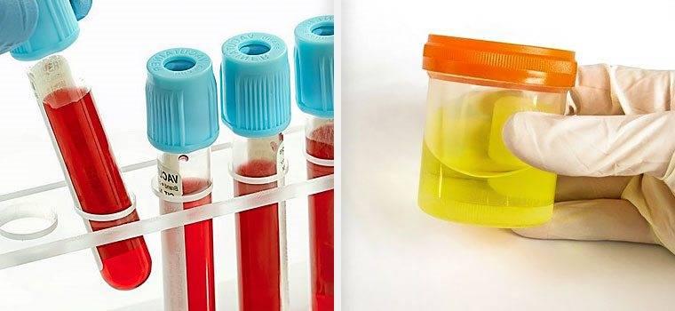 Лабораторные методы диагностики анализа крови и мочи
