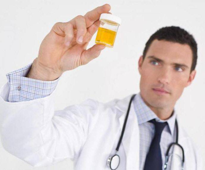 Анализы при цистите необходимые для диагностирования