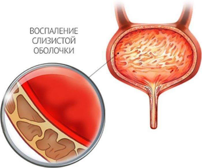 Цистит - воспаление слищитой мочевого пузыря