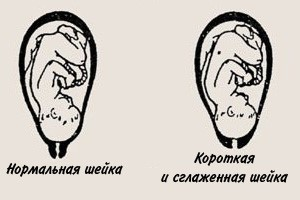 Пиелоэктазия почки: правой или обеих