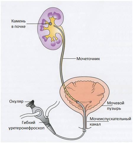 Гибкий нефроскоп введенный в лоханку почки