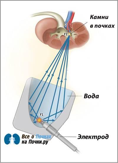 электрогидравлическая литотрипсия камней в почках