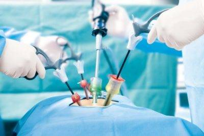 Лапароскопическая уретеролитотомия