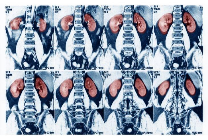 Компьютерная томография почек подготовка — Почки