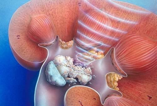 Трипельфосфаты в моче у ребенка