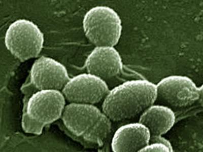 Enterococcus faecalis в мазке - что это такое?