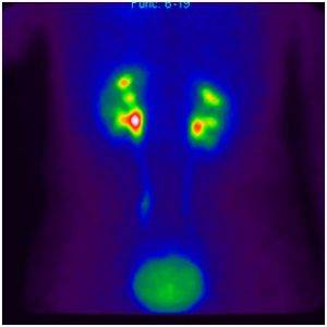Рентгенонегативные камни в почках это