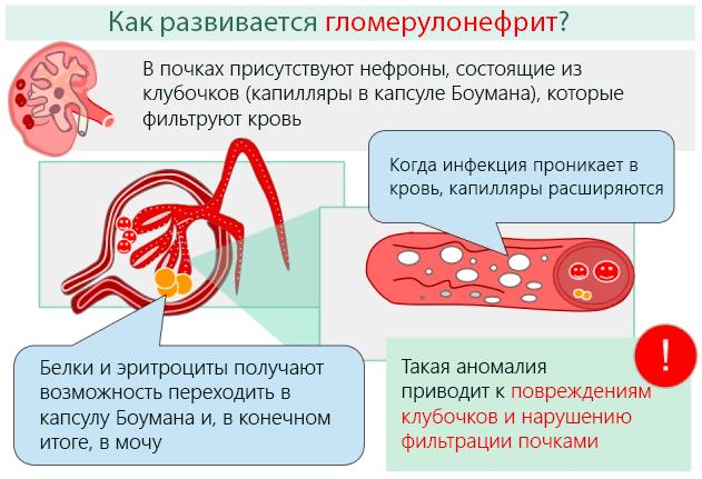 Развитие гломерулонефрита вследствие нарушения фильтрационной способности клубочков