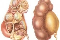Гидронефроз почки — причины, симптомы, диагностика и лечение