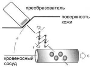 Результаты допплерографии почечных сосудов