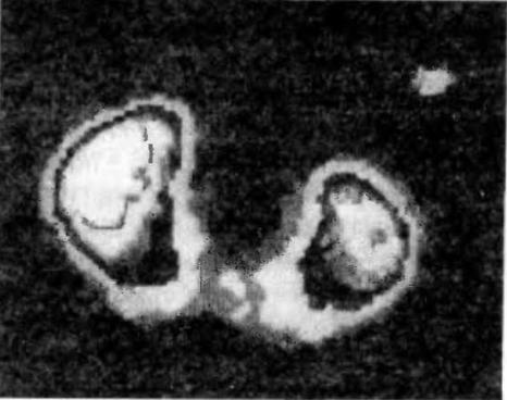 Гамма-сцинтиграмма при подковообразной почке