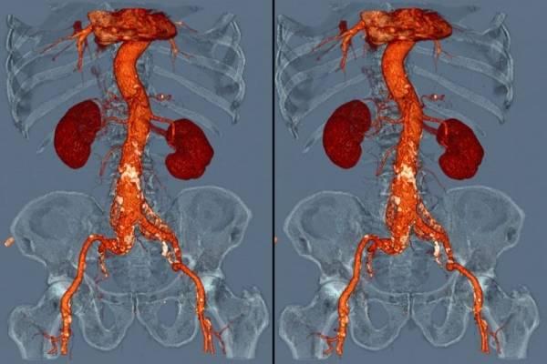 МРТ почек с контрастом и без: показания, подготовка, проведение процедуры