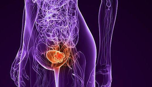 Слабый мочевой пузырь у женщин лечение таблетки — Почки
