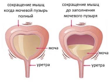 Почему появляется ощущение полного мочевого пузыря после мочеиспускания у мужчин и женщин