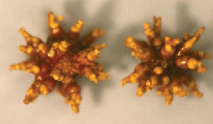 коралловидный камень в почке