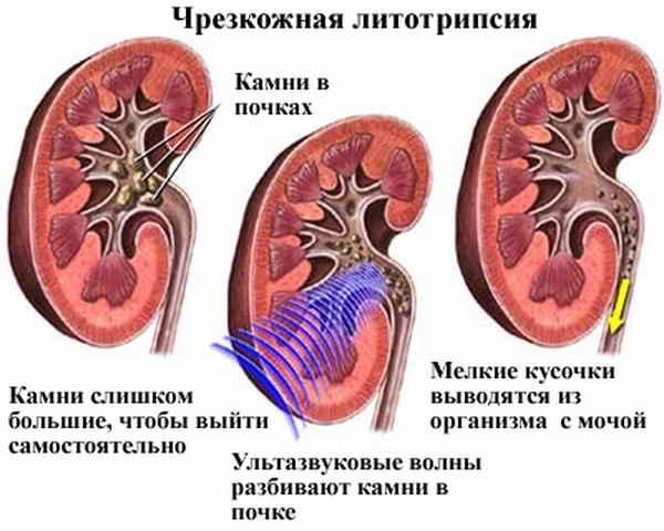 Показания к дроблению камней в почках при помощи ультразвука