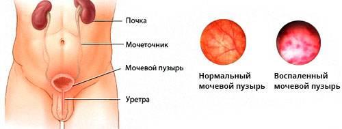 Мочевой-пузырь-1