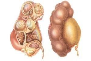 Как лечить воспаление мочеполовой системы у мужчин. Заболевания мужской мочеполовой системы
