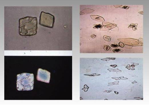 Что означают кристаллы в моче
