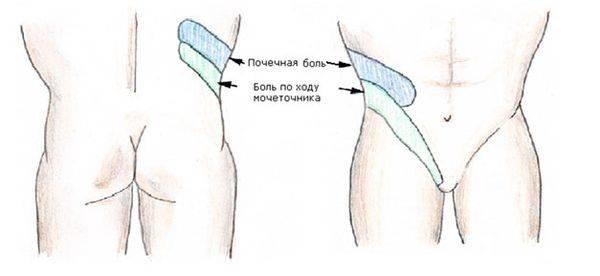 Проявления боли в почках у мужчин