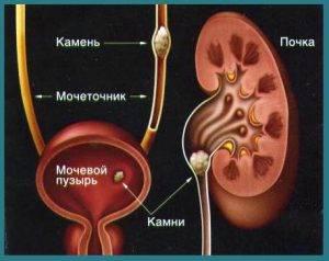 Mochekamennaya_bolezn_simptomy_i_lechenie_u_zhenshchin
