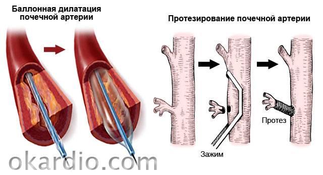 баллонная дилатация и протезирование почечной артерии