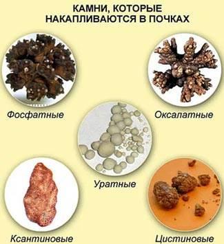 Симптомы выхода камней из почек у мужчин