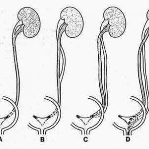 четыре почки у человека