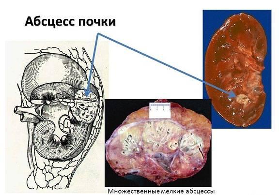 Можно ли вылечить хронический пиелонефрит навсегда