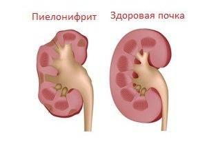 хронический пиелонефрит лечение