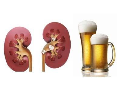 Влияние алкоголя на почки. Совместимы ли пиво и почки?