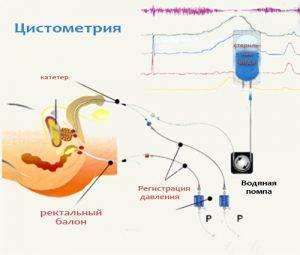 Какую роль играет норма остаточной мочи при аденоме простаты?