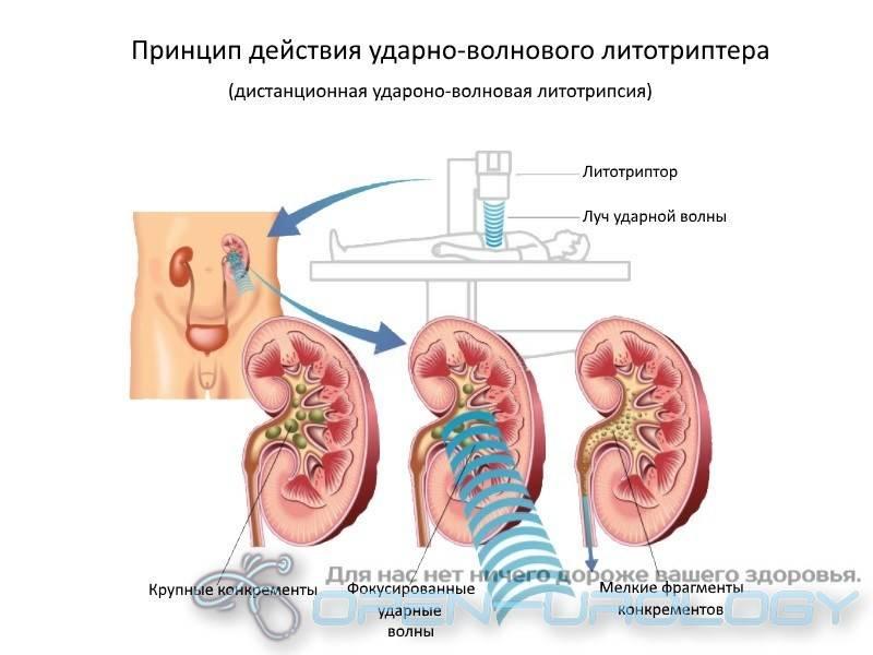 ударно-волновая литотрипсия