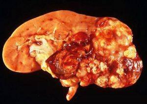 Рак почки: прогнозы после удаления