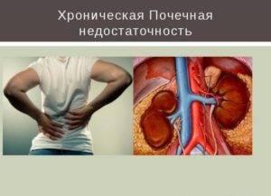 Заболевание почки